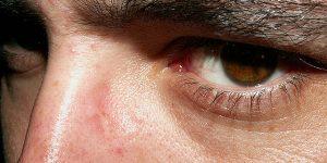 remover facilmente os cravos da pele
