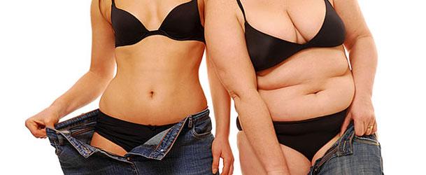Pele depois de perda de peso em mulheres de uma foto