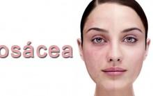 Rosácea: Causas e Tratamentos Naturais