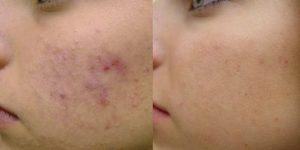 remédios naturais para eliminar a acne