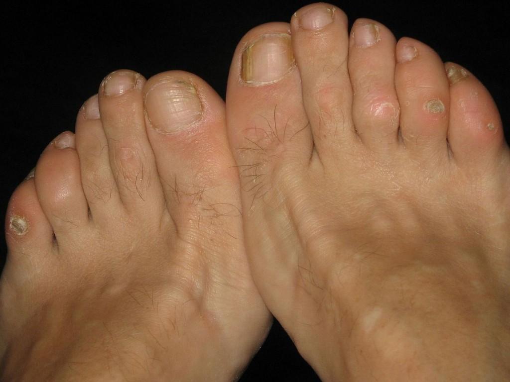 bicarbonato de sódio para eliminar calos nos pés