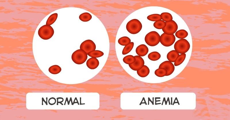 Receitas Caseiras Para Acabar com Anemia