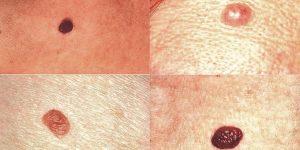 remédios caseiros para remover as verrugas