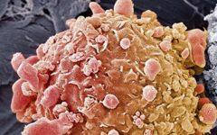 Os 6 Ingredientes Que Vão Combater o Câncer Naturalmente