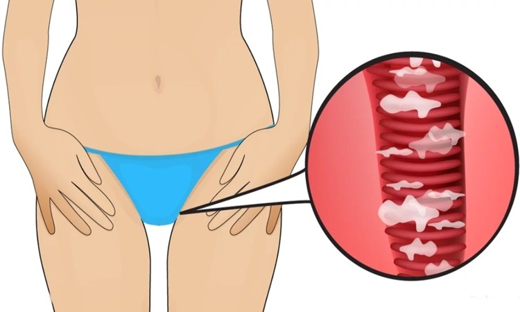 Tratar Corrimento Vaginal