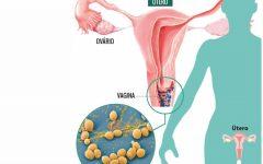 Os 10 Remédios Caseiros Para Tratar a Coceira Vaginal