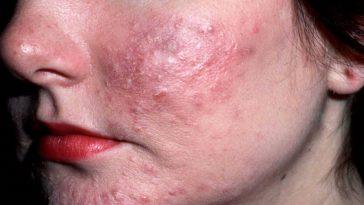 formas caseiras para eliminar espinhas do rosto