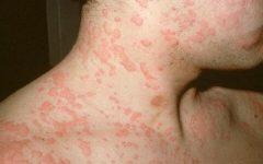 As 6 Dicas Caseiras Para Tratar Alergia