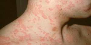 dicas caseiras para tratar alergia naturalmente