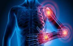 Os 5 Alimentos Saudáveis Para Artrite
