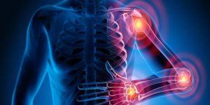 principais alimentos saudaveis para artrite