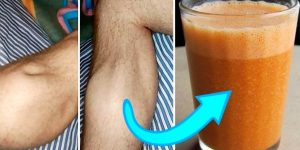 caibra muscular