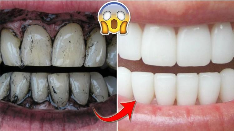 dicas de como clarear os dentes naturalmente