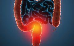 Os 10 Remédios Caseiros Para Combater Colite