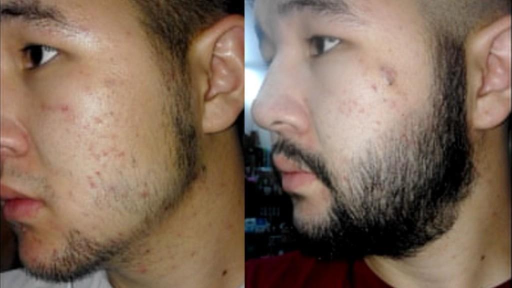 Remédios Caseiros que Ajudam a Barba Crescer