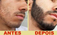 Os 10 Remédios Caseiros que Ajudam a Barba Crescer!