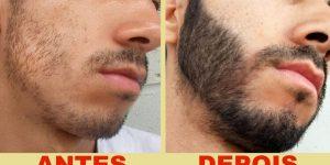 remedios caseiros para ajudar barba crescer