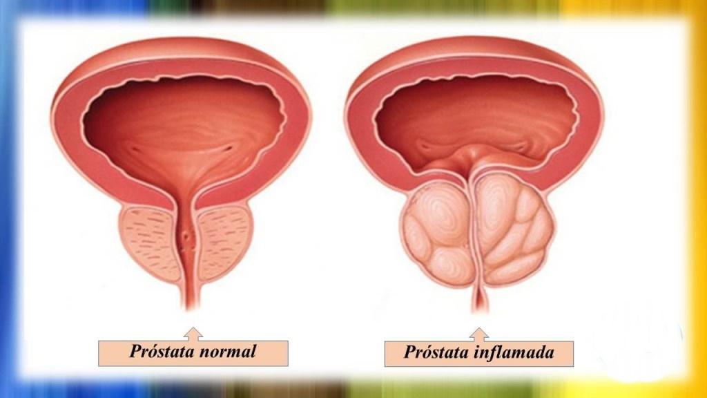 Remédios Caseiros Para Tratar Próstata Aumentada