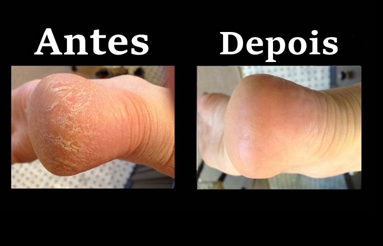receitas caseira para remover calos dos pés