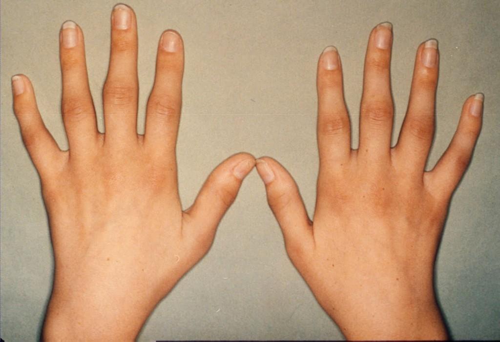remedio para artrite