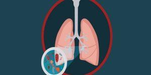 remédios caseiros para bronquite
