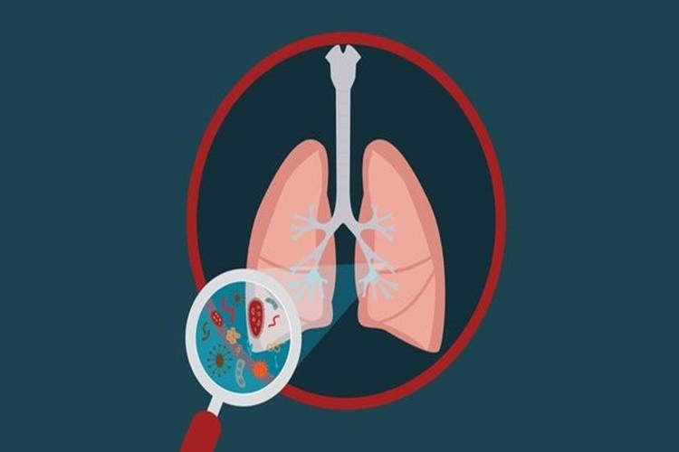 Remedios Caseiros Para Bronquite
