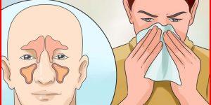 receitas caseiras para combater a sinusite