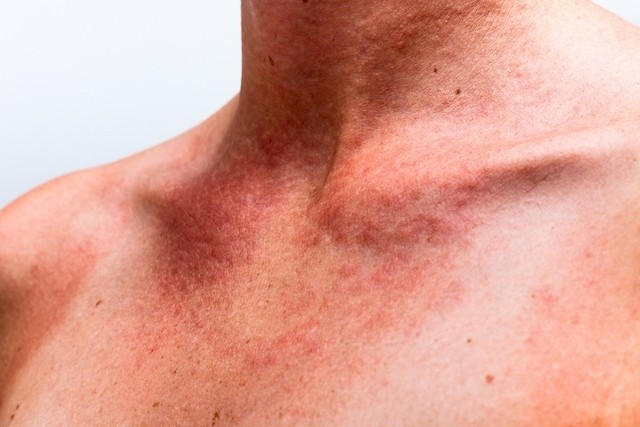tratar alergia
