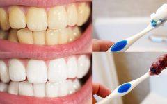As 6 Dicas Naturais Para Clarear os Dentes em Casa!