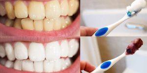 dicas naturais para clarear os dentes em casa