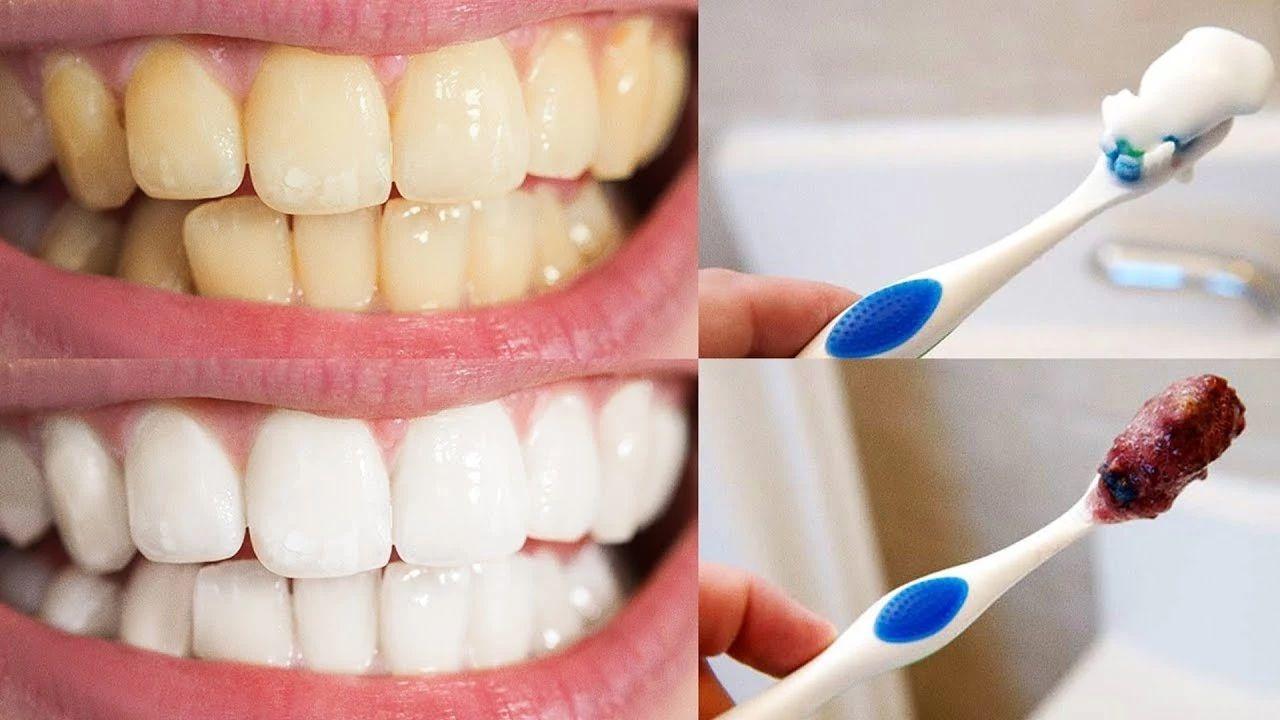 As 6 Dicas Naturais Para Clarear Os Dentes Em Casa Funciona
