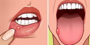sintomas de deficiencia de folato