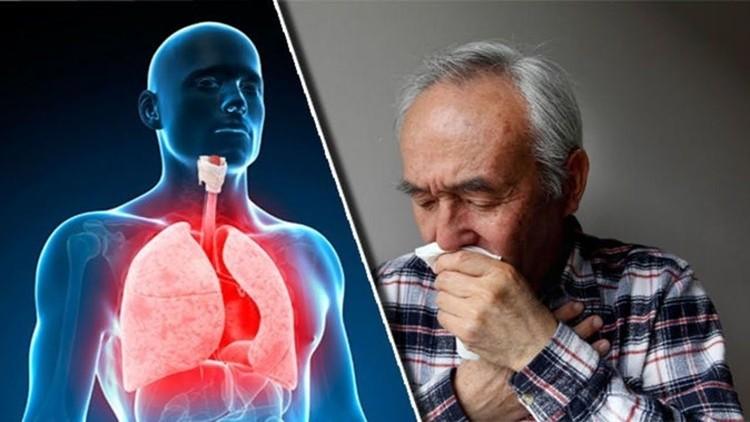 melhores remédios caseiros para tosse