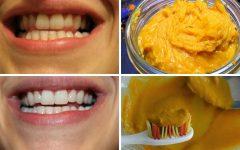Como Clarear Os Dentes Naturalmente Sem Sair de Casa!