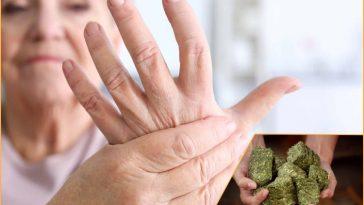 Remedios Naturais Para Artrite e Dor Nas Articulaçoes