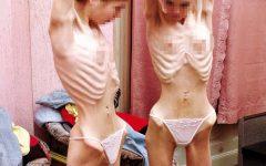 Os 9 Sintomas de Anorexia Nervosa