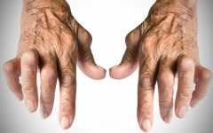 Remédio Caseiro Para Combater a Artrite