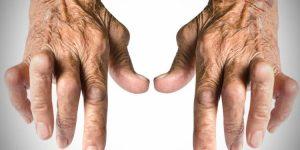 remedio caseiro para combater a artrite