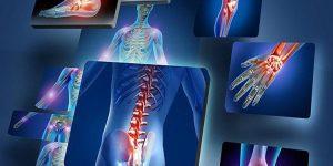 curcuma para aliviar dor nas articulaçoes