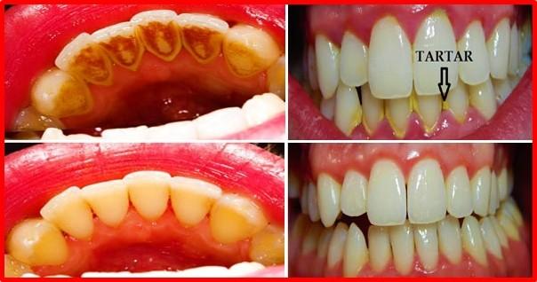 remedios caseiros para remover o tartaro e a placa bacteriana dos dentes