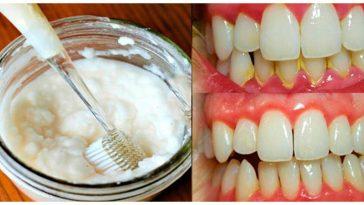 remover o tártaro dos dentes
