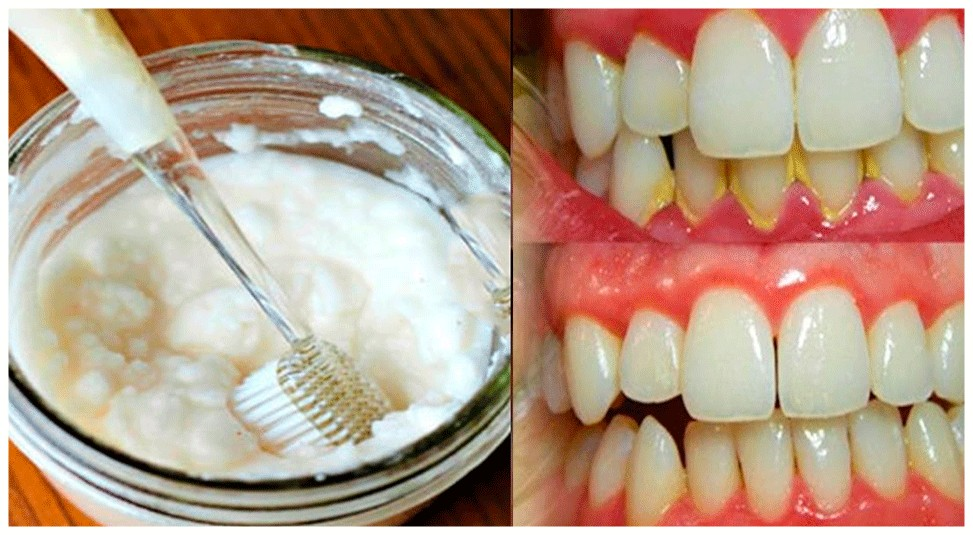remedios naturais para remover o tartaro dos dentes