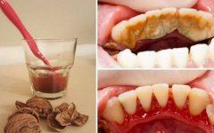 Seja seu Próprio Dentista: Como Remover o Tártaro em Casa!