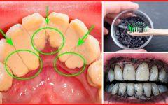 Os 3 Cremes Caseiros Para Remover o Tártaro dos Dentes Completamente