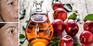 vinagre de maçã no rosto para limpar a pele