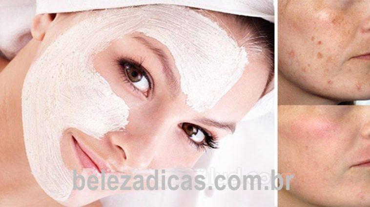 Máscara Caseira Para Ajudar a Tratar Problemas de Pele