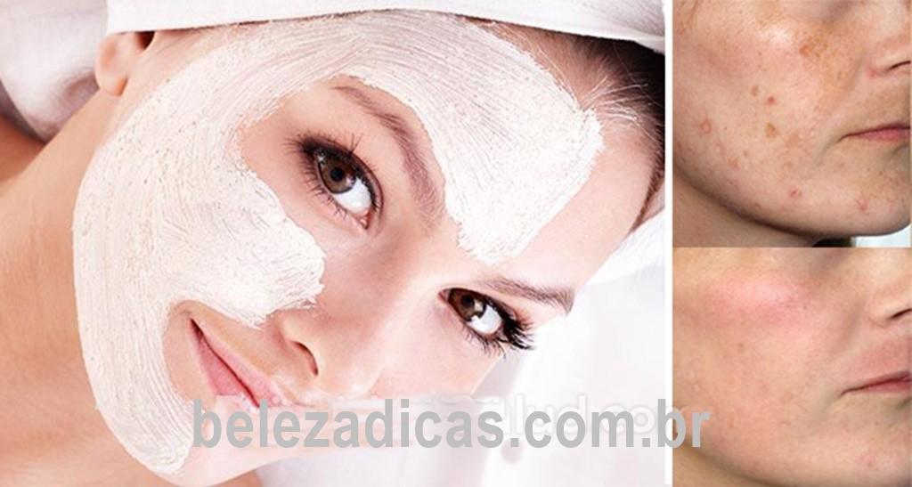 máscara caseira para tratar problemas de pele