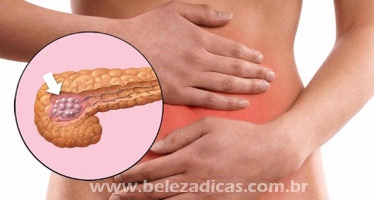sinais de cancer de pancreas