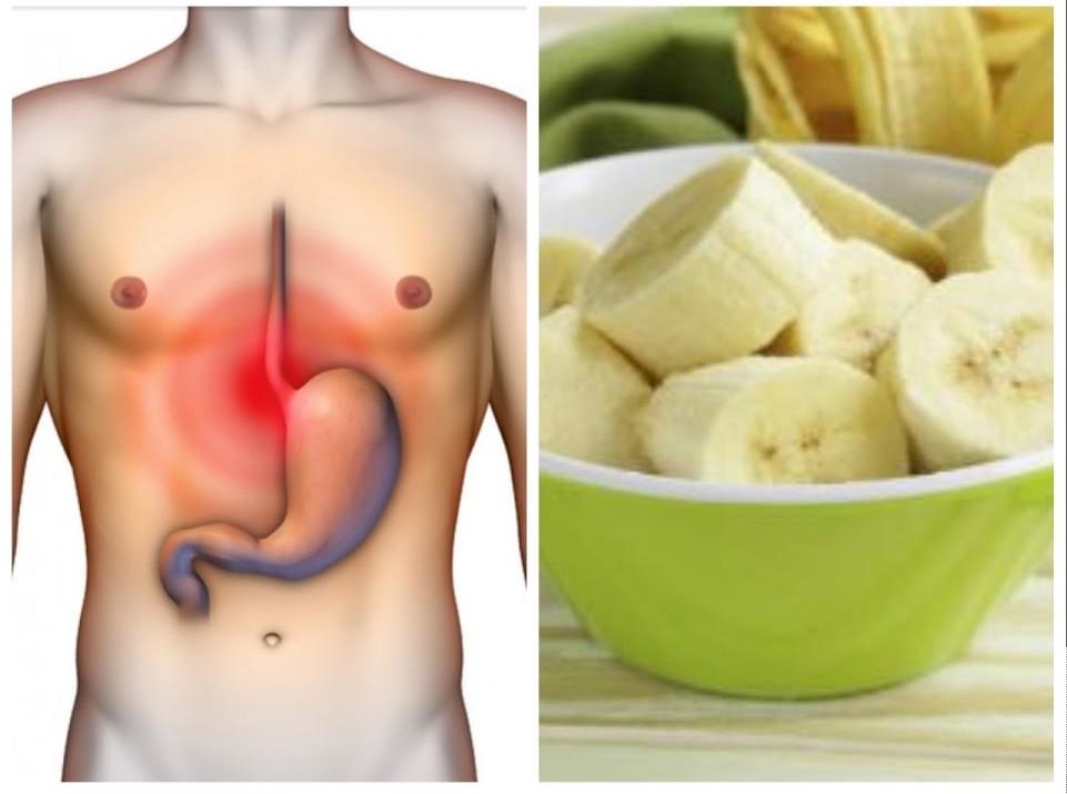 alimentos para a gastrite
