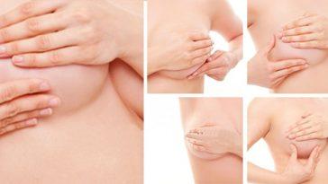 detctar o cancer de mama